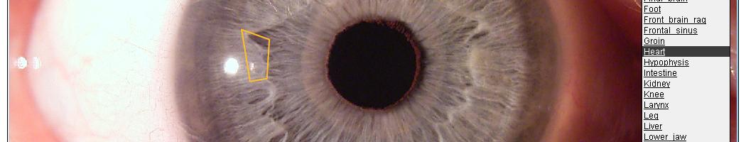 Augendiagnose Lernprogramm und Arbeitsprogramm