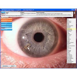 Digitale  Augendiagnose DA8
